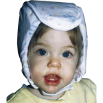 Plum's® ProtectaCap® Custom-Fitting Protective Headgear in Baby Size Hand -Print Design